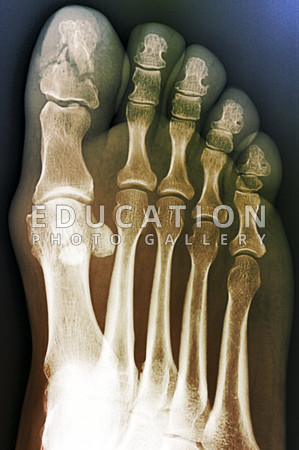 broken bone in big toe submited images